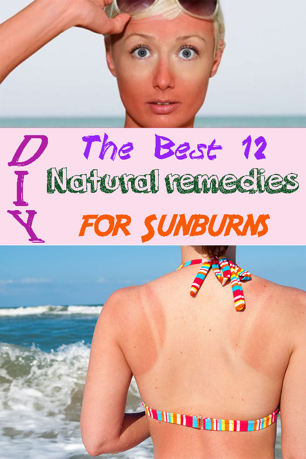 The Best 12 Natural remedies for Sunburns